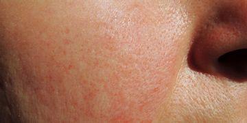 L'acarien Demodex Folliculorum pourrait se cacher derrière le phénomène de la rosacée