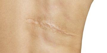 Comment prendre soin d'une cicatrice ?