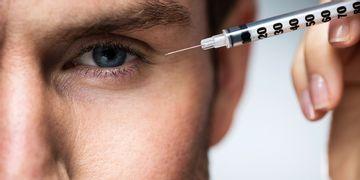 Lipofilling visage : un effet rajeunissant naturel