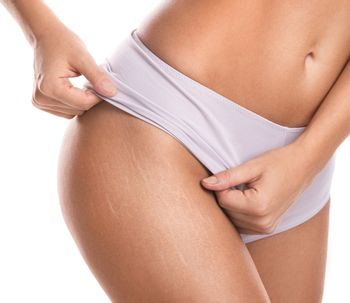 Cellulite un autre regard