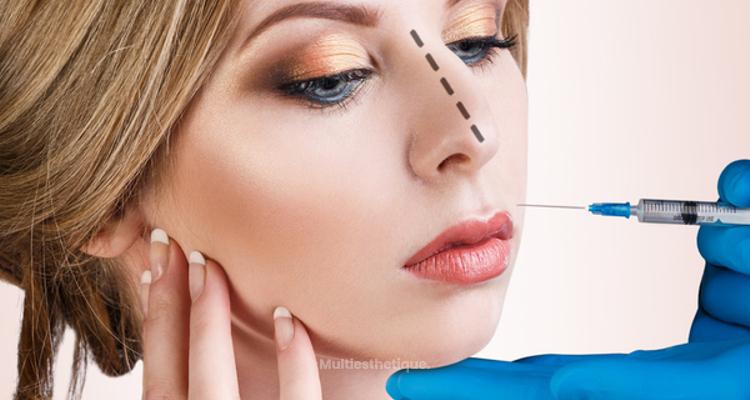 Injection dans le nez : la rhinoplastie médicale sans chirurgie