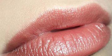 Lèvres repulpées grâce à l'acide hyaluronique