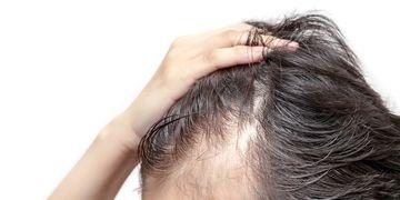 La mésothérapie pour lutter contre la chute des cheveux