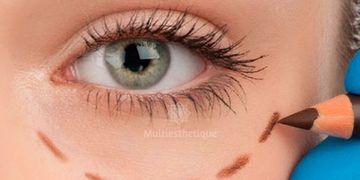 Poches sous les yeux : faire appel à la chirurgie laser