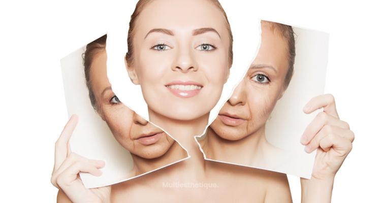 En quoi consiste le lifting cervico-facial ?
