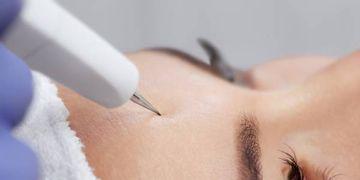Traitement de veines superficeilles par microsclerothérapie