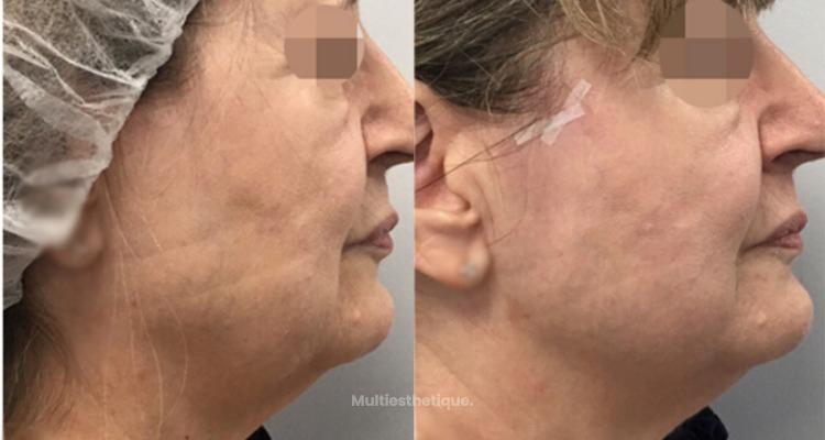 Acide hyaluronique et fils tenseurs pour un rajeunissement médical du visage