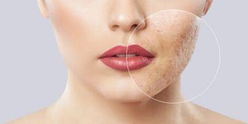 Comment éliminer ses cicatrices d'acné ?