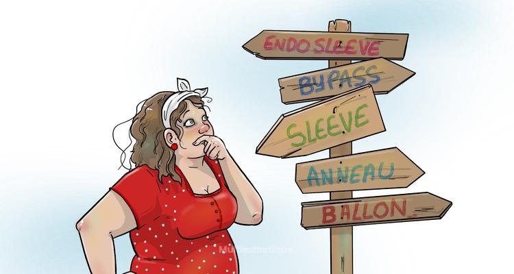 Nouveau dans la prise en charge de l'Obésité : La fundo-plicature gastrique ou « Sleeve-endoscopique »