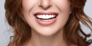 Et les facettes dentaires ?