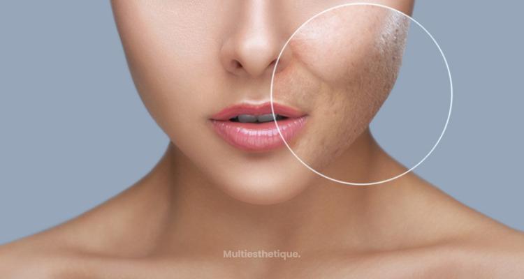 Éliminer les cicatrices d'acné grâce au punch grafting