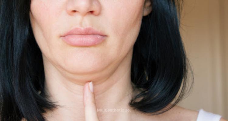 La liposuccion du visage, qu'est ce que c'est ?