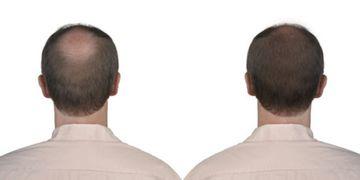 DHI, la nouvelle méthode de greffe de cheveux
