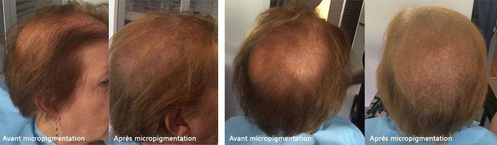 micropigmentation-capillaire.jpg