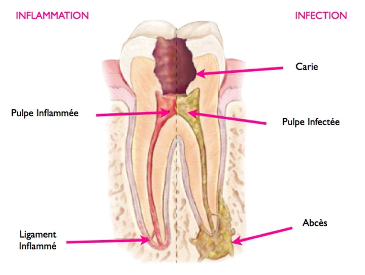 Dent nécrosée schéma