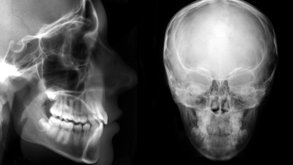 chirurgie-orthognatique-photo-3.jpg