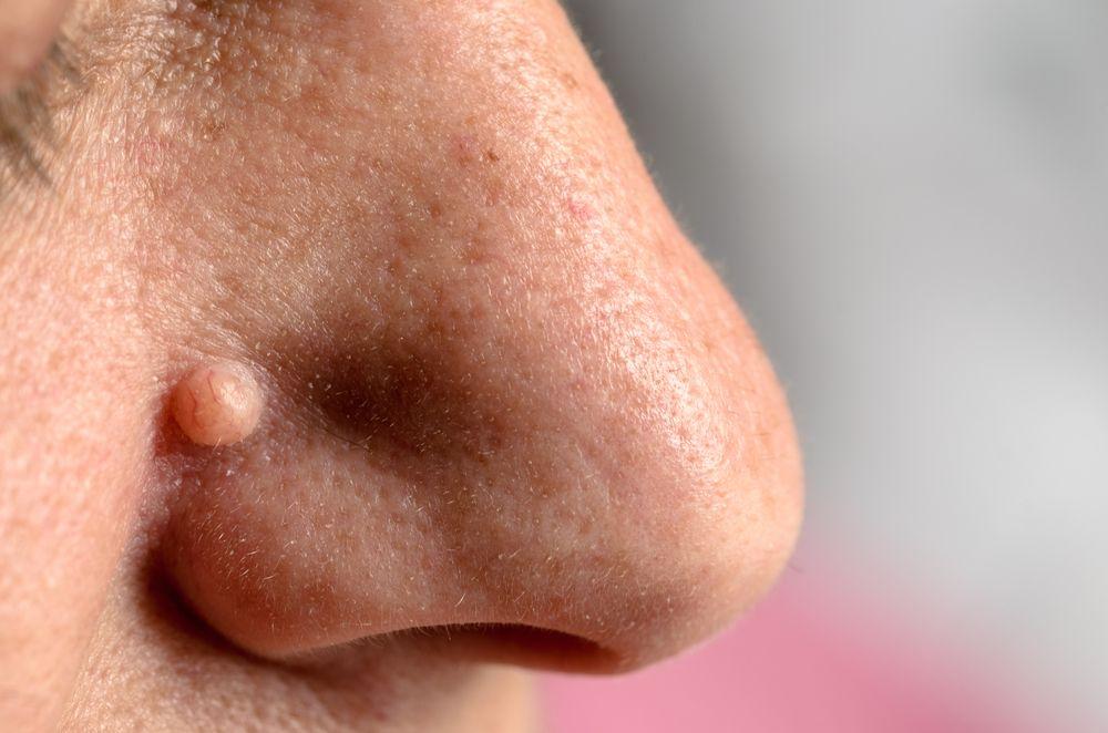 verrue sur le nez