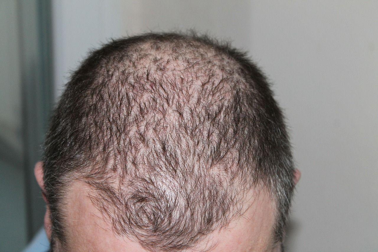 greffe-de-cheveux-photo-2.jpg