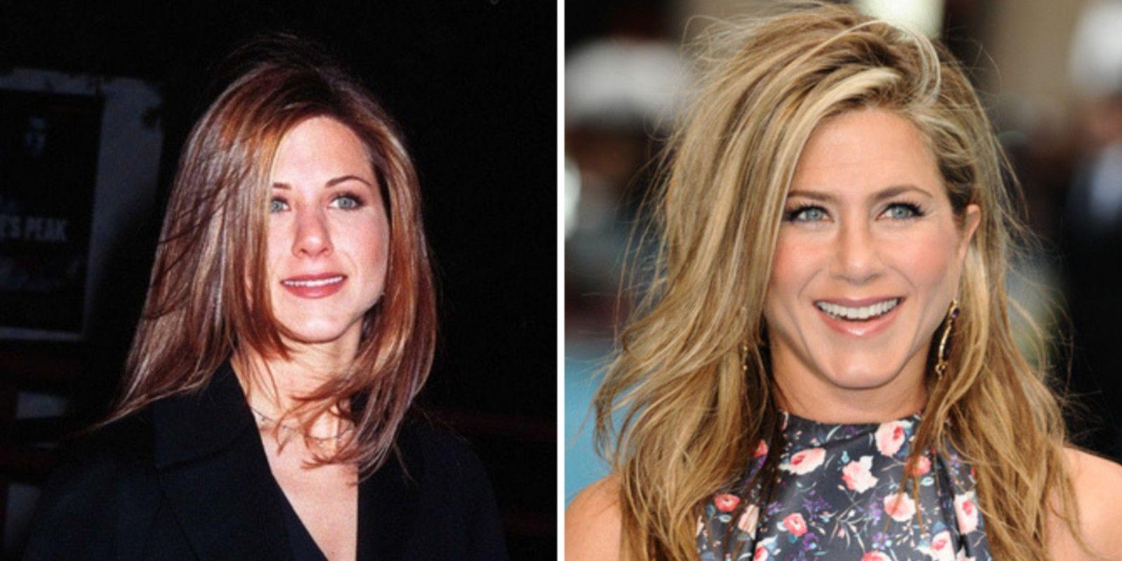 Jennifer Aniston Bichectomie Avant / Après