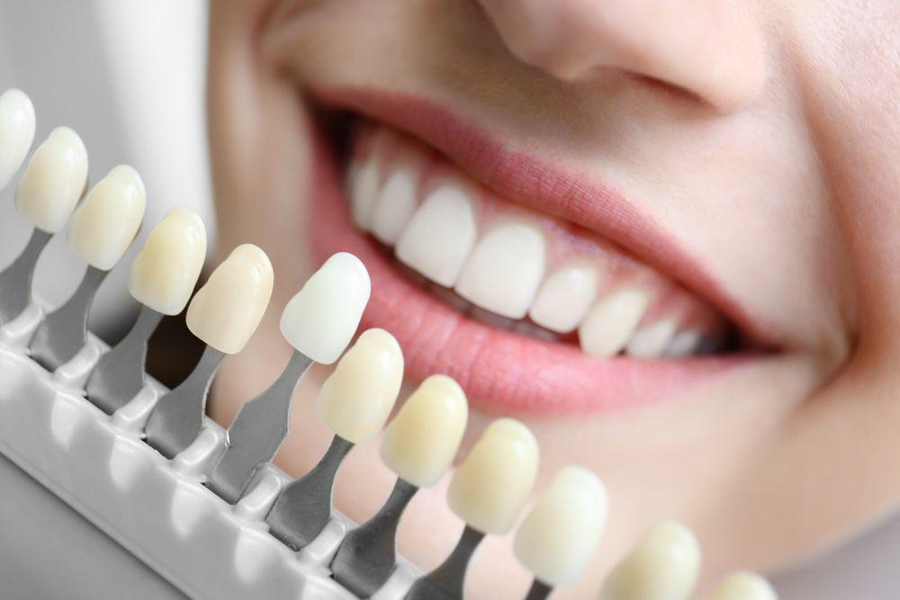 implants-dentaires-mci-photo-2.jpg