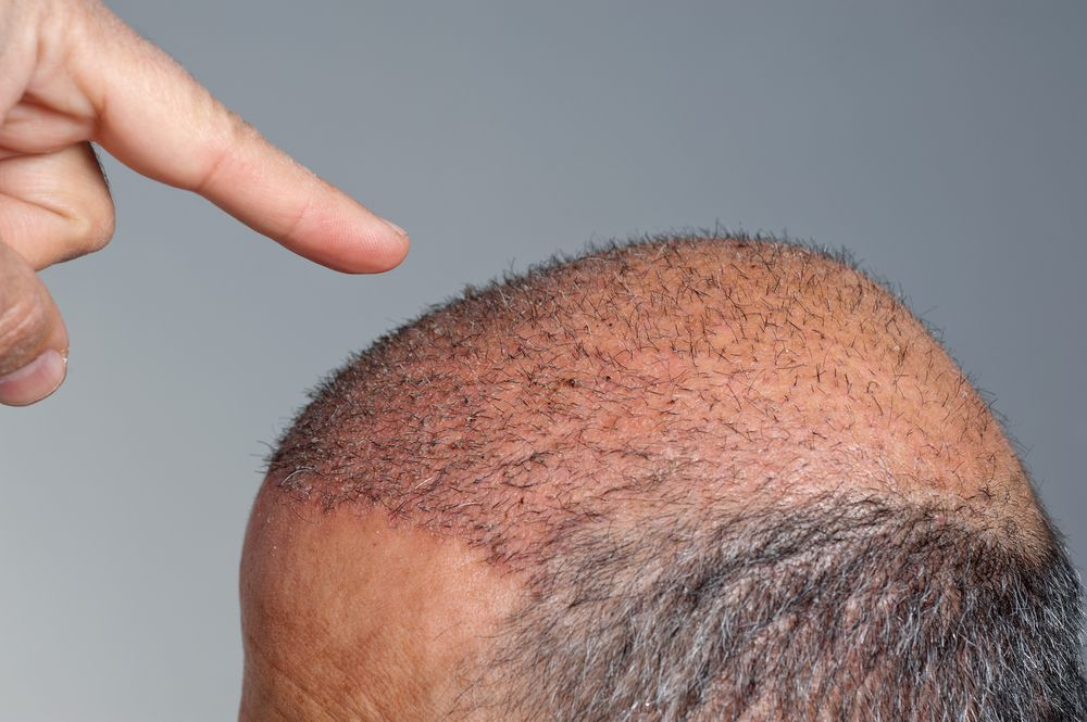 implants-capillaires-photo-3.jpg