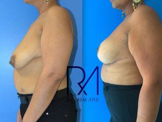 Avant après Pexie (lifting mammaire) + Lipofilling