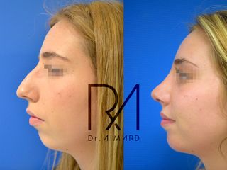 Avant après Profiloplastie : Rhinoplastie + lipofilling du menton