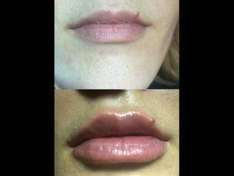 Augmentation des lèvres-632249