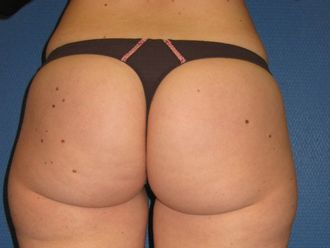 Liposuccion - 615253
