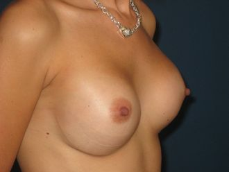 Augmentation mammaire - 624673