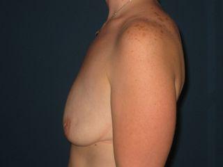 Augmentation mammaire -ptose mammaire avant