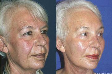 Avant après Lifting cervico facial