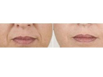 Augmentation des lèvres-587116
