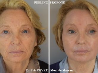 Peeling-586012