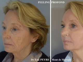 Avant après Peeling - methode Exopeel