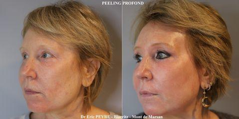 Peeling - Dr Eric Peyre