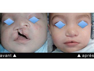 Chirurgie maxillo-faciale - 545085