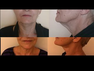 lifting_cervico-facial