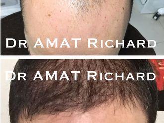 Greffe de cheveux-539737