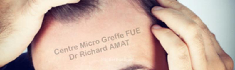 Dr AMAT greffe FUE