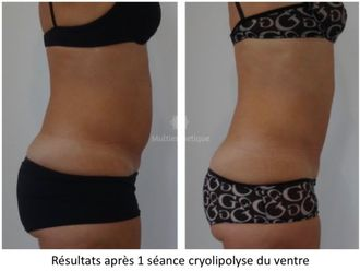 Cryolipolyse - 623885