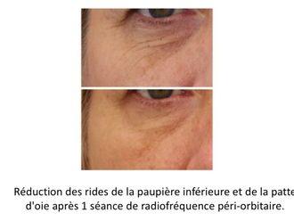 Radiofréquence - 623886