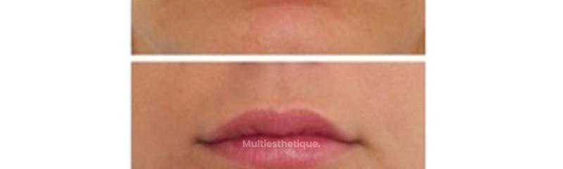 Injection Acide Hyaluronique lèvre supérieure