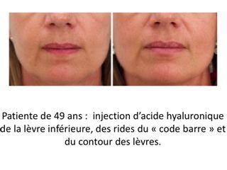 Avant après Injection Acide Hyaluronique lèvres