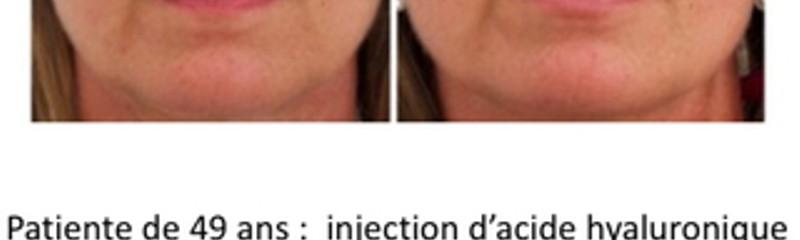 Injection Acide Hyaluronique lèvres