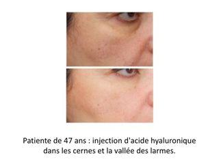Avant après Injection Acide Hyaluronique cernes et vallée des larmes