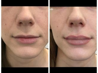 Augmentation des lèvres-599025