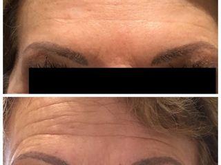 Avant après Botox Front