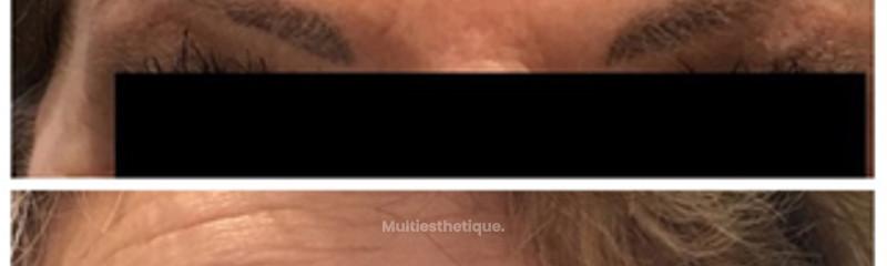 Botox Front