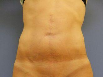 Abdominoplastie-436177
